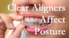 Clear aligners influence posture which Vancouver chiropractic helps.