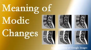 Vancouver Disc Centers sees many back pain and neck pain patients who bring their MRIs with them to the office. Modic changes are often noted.