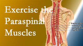 Vancouver Disc Centers describes the importance of paraspinal muscles and their strength for Vancouver back pain relief.