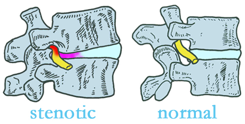 Vancouver stenotic and normal spinal discs