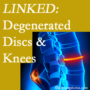 Degenerated discs and degenerated knees are not such unlikely companions. They are seen to be related. Vancouver patients with a loss of disc height due to disc degeneration often also have knee pain related to degeneration.